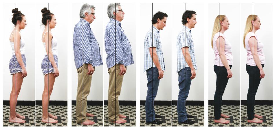 ABC™ posture changes - Kirsh Chiropractic Blackburn Chiropractor