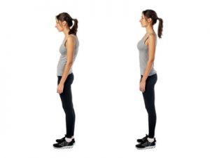 Posture Correction, Poor Posture, Kirsh Chiropractic Blackburn Victoria